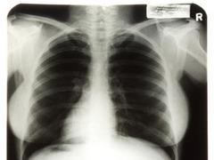 Рентгеновские снимки Монро ушли с молотка за 45 тысяч долларов