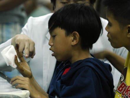 Пострадавший от фейерверка филиппинец. (c) AFP