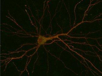 Нейрон. Фото Johns Hopkins Medicine