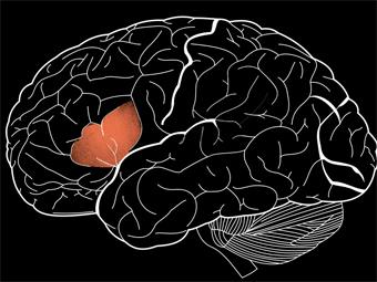 Физиологи уточнили местоположение нейронов речи